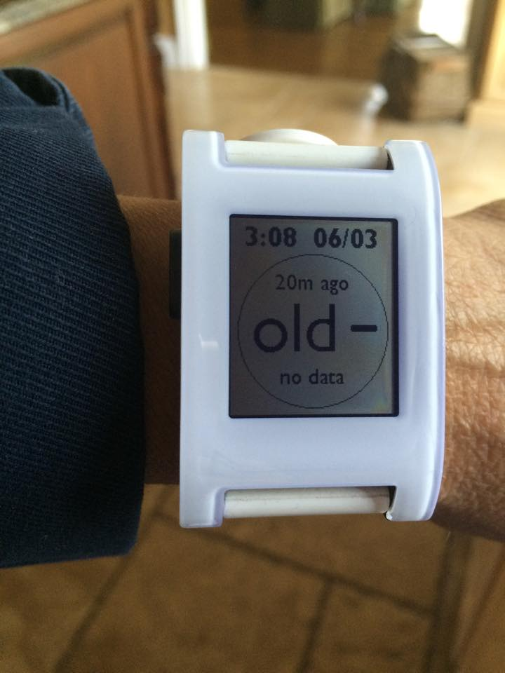 Pebble & Pebble Time Watchface w/Share Support – The